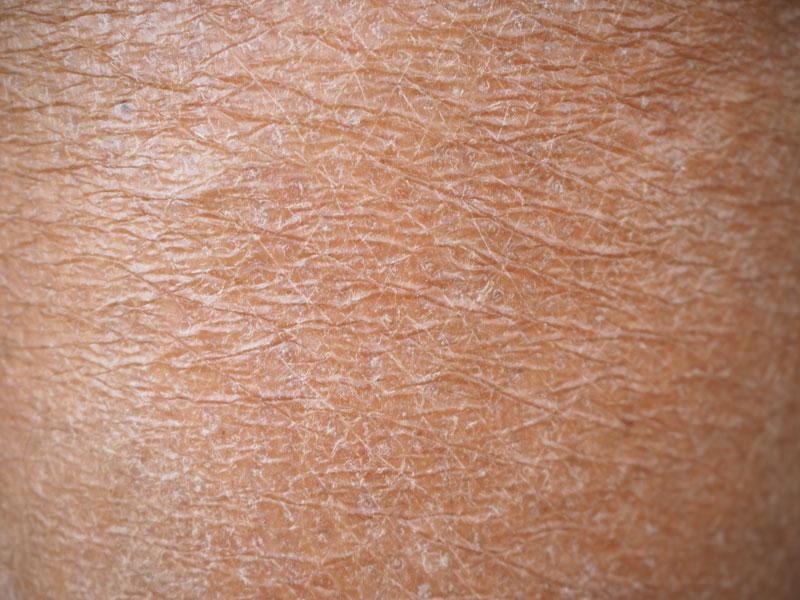 piel madura