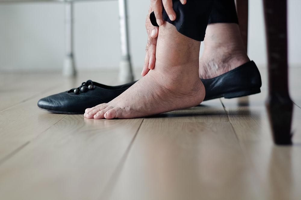 piernas i tobillos hinchados de mujer mayor